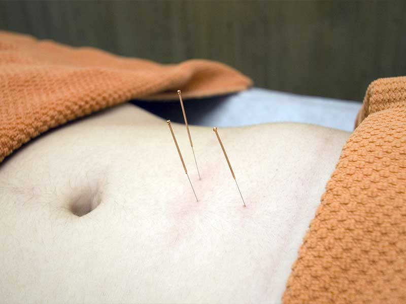 How Can Acupuncture Treat Illnesses? - What Is Acupuncture?