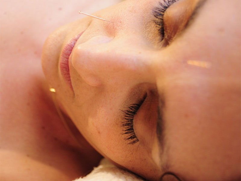 What Can Facial Acupuncture Actually Do to Your Skin?