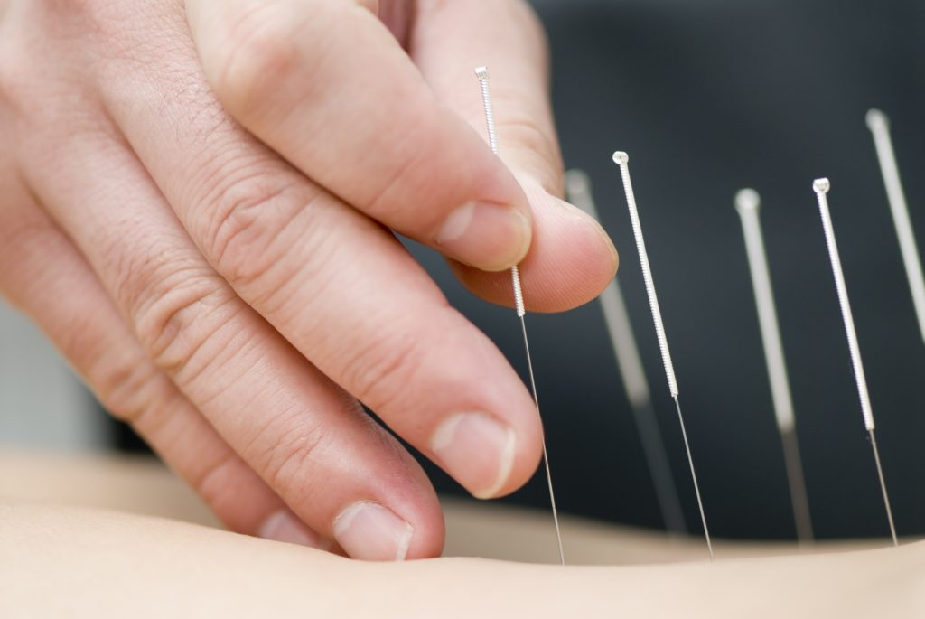 Chinese Acupuncture - Resources